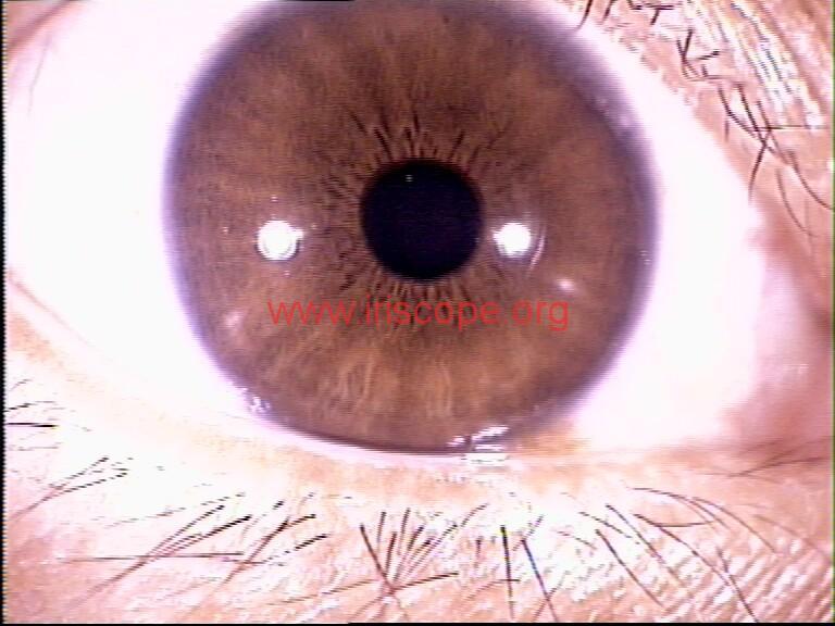 iridology images (33)