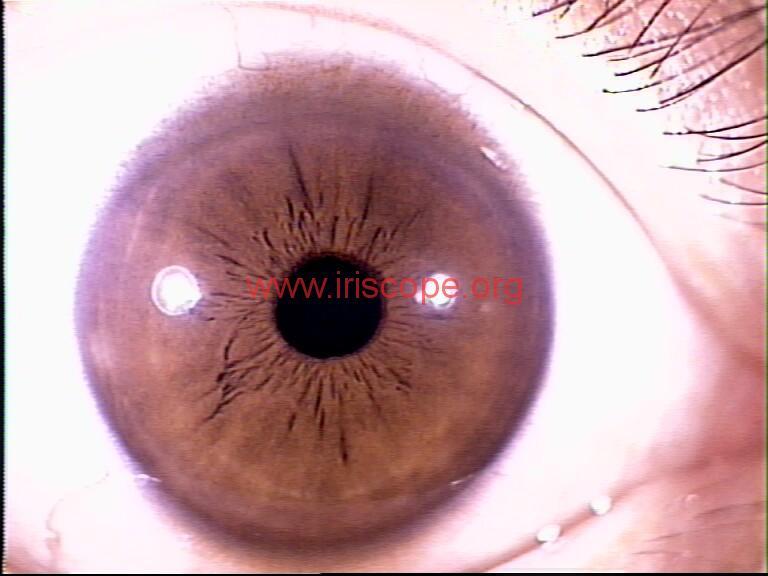 iridology images (34)