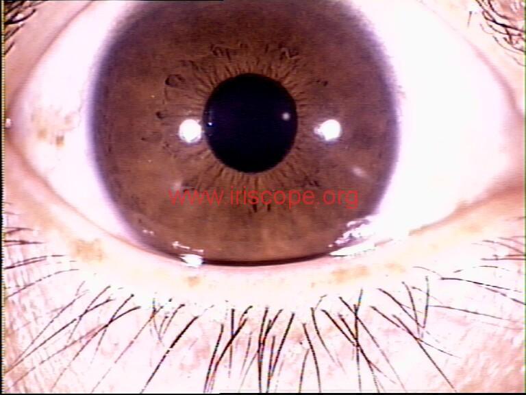iridology images (35)