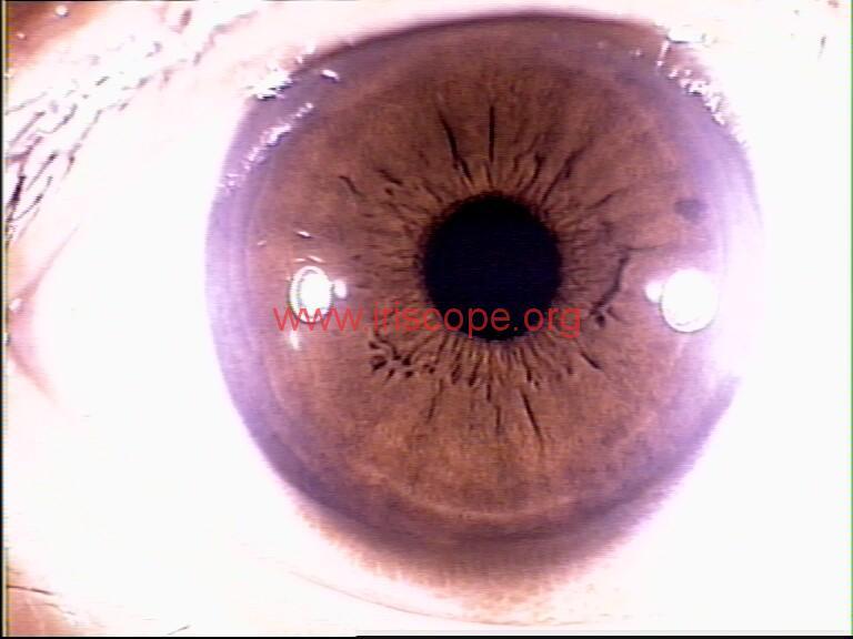 iridology images (36)