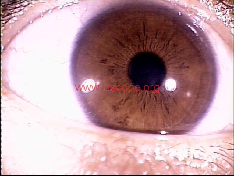 iridology images (37)