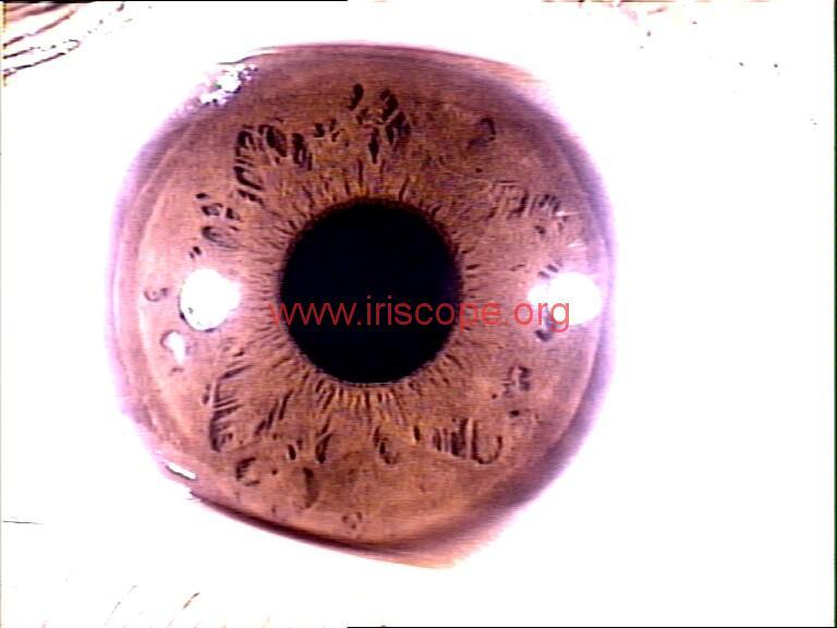 iridology images (38)