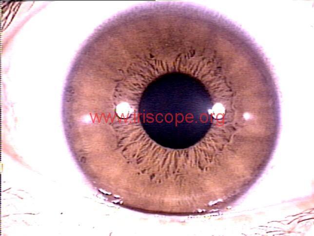 iridology images (39)