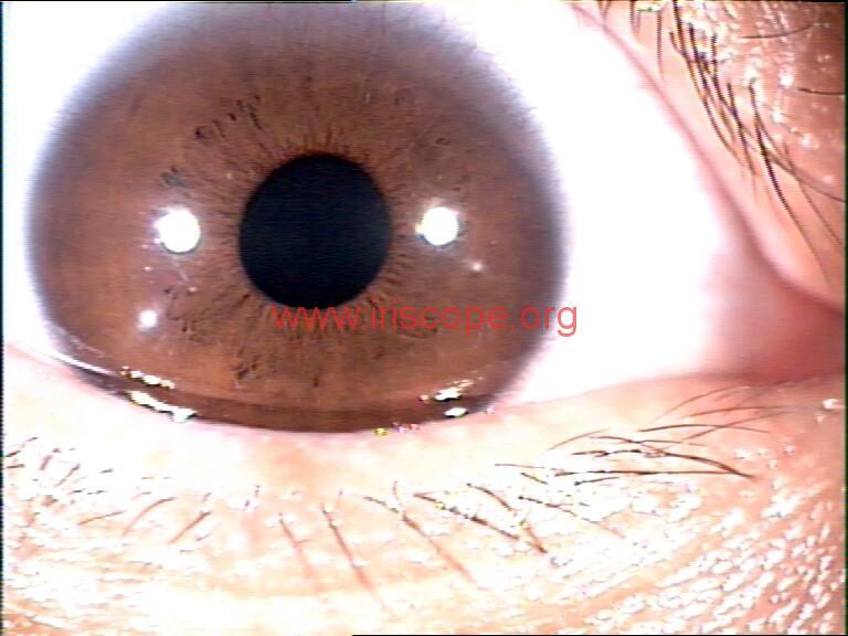 iridology images (40)