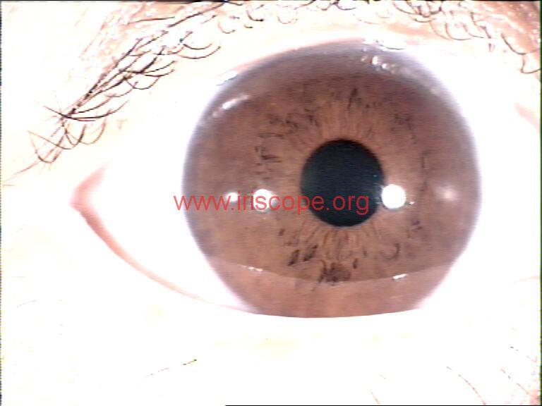 iridology images (41)