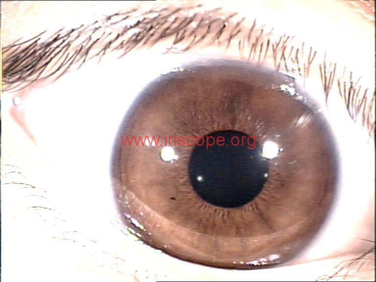 iridology images (42)