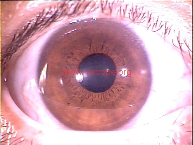 iridology images (43)