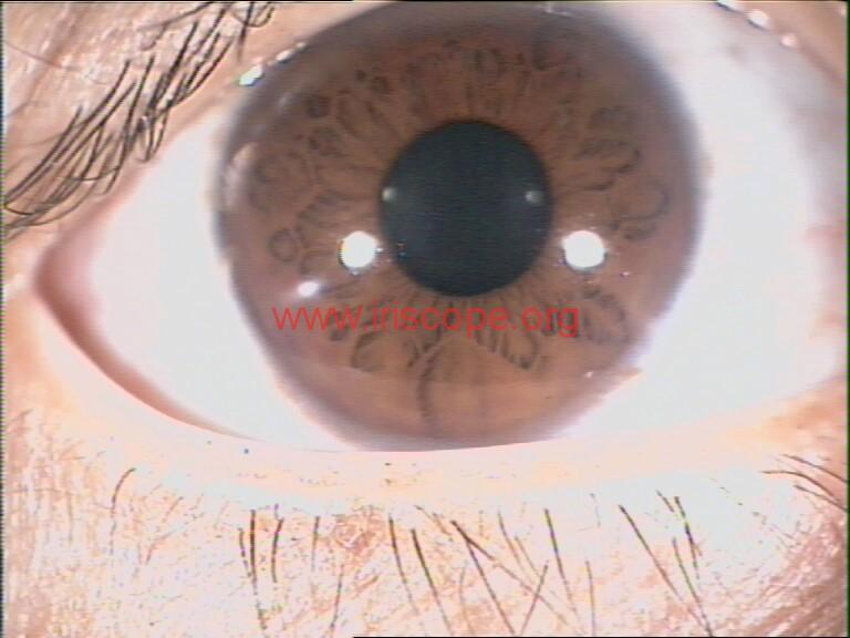 iridology images (44)