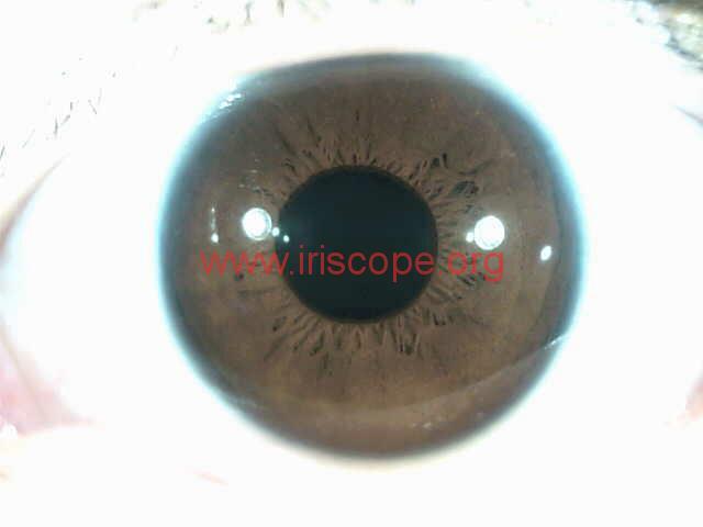 iridology images (45)