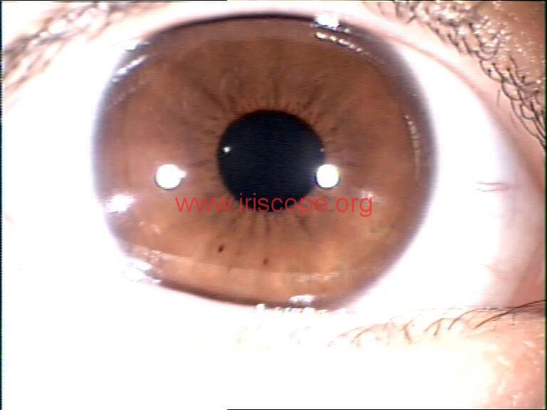 iridology images (46)