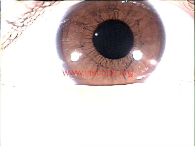 iridology images (47)