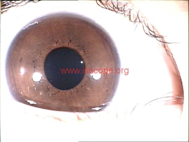iridology images (48)