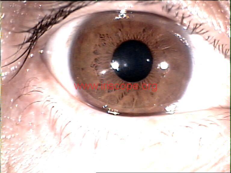 iridology images (49)