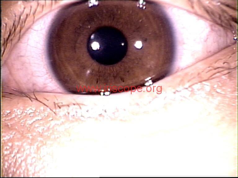 iridology images (5)