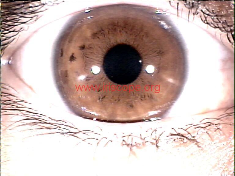 iridology images (50)