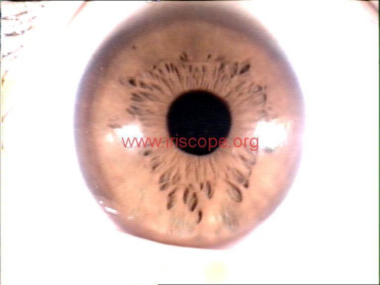 iridology images (51)