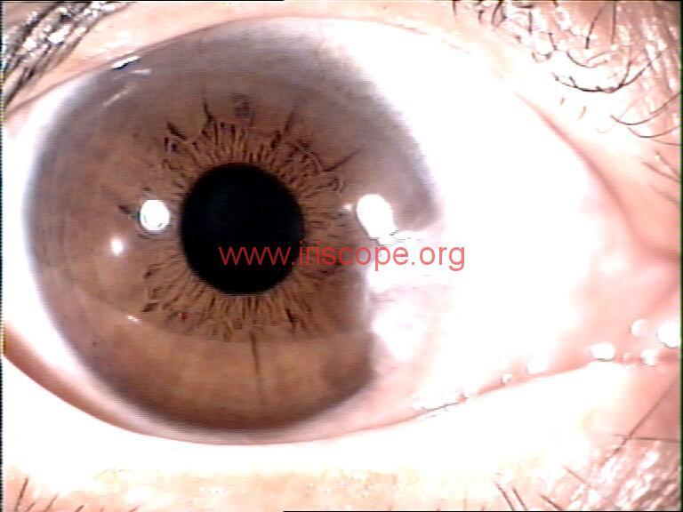 iridology images (52)