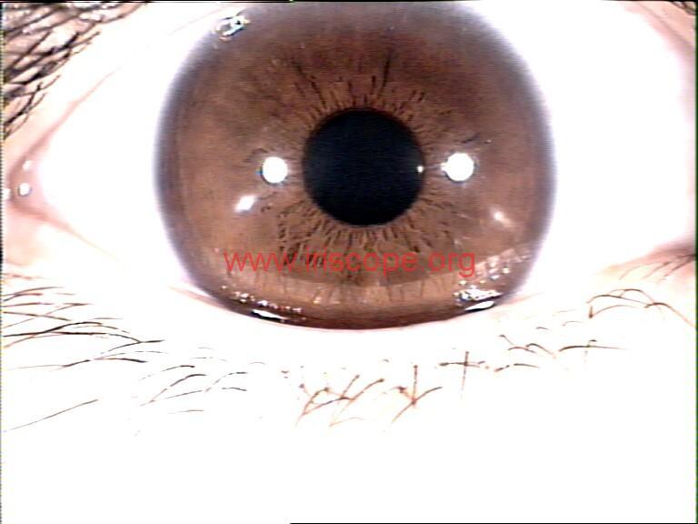 iridology images (53)
