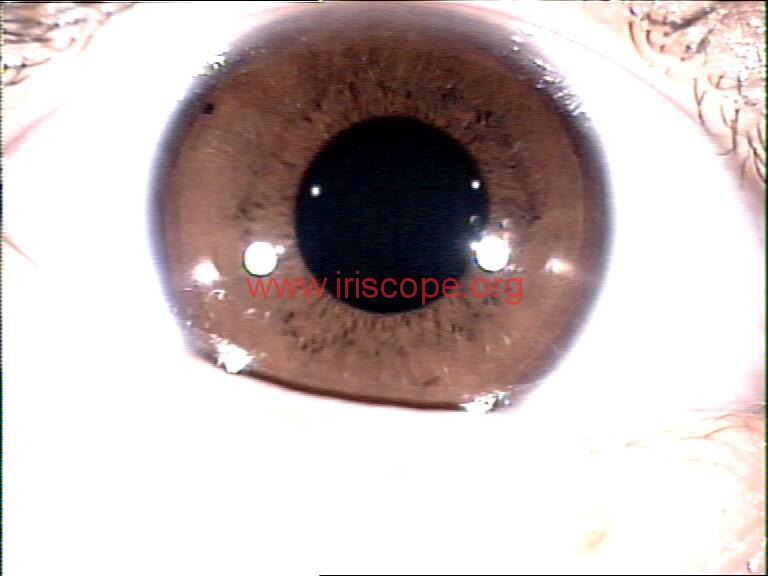iridology images (54)