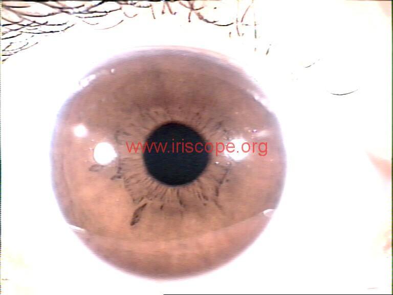 iridology images (55)