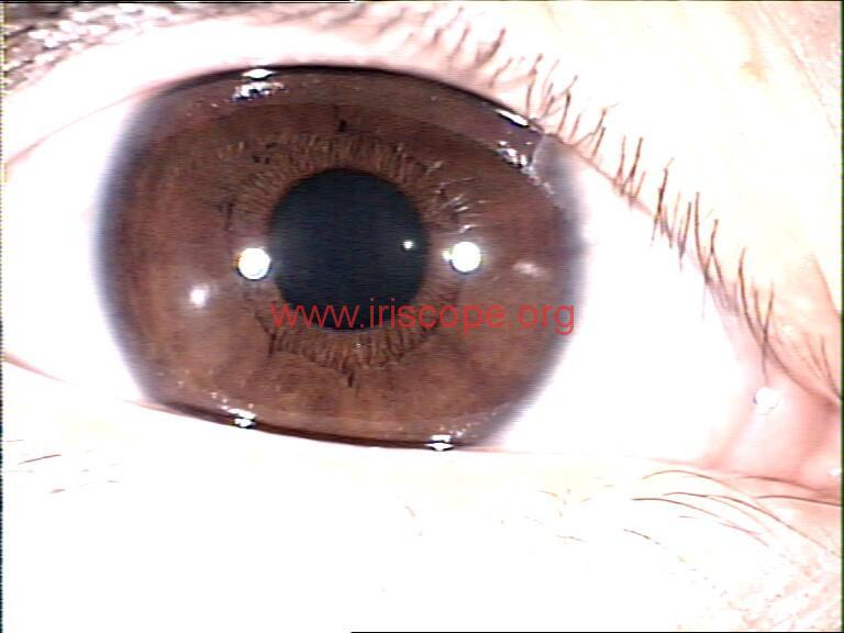 iridology images (56)
