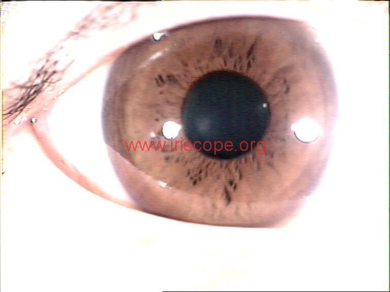 iridology images (57)