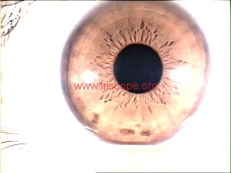 iridology images (58)