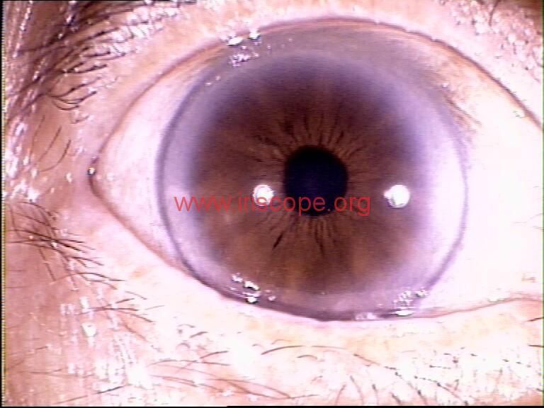 iridology images (59)