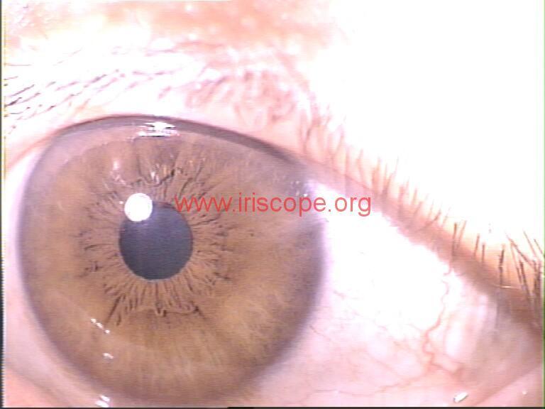iridology images (62)