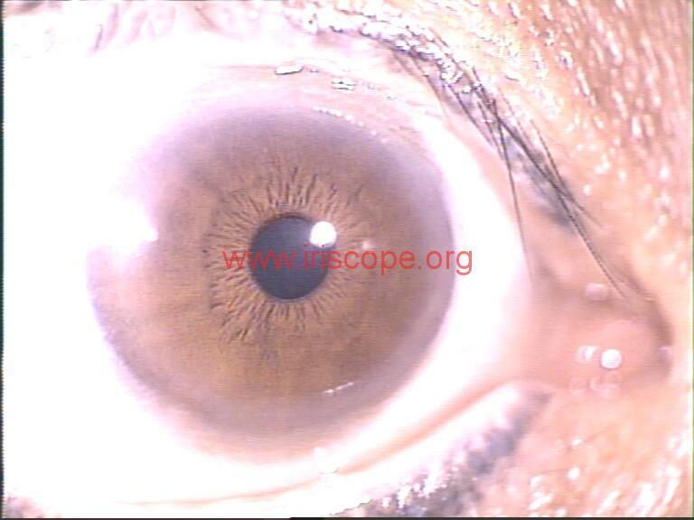 iridology images (63)