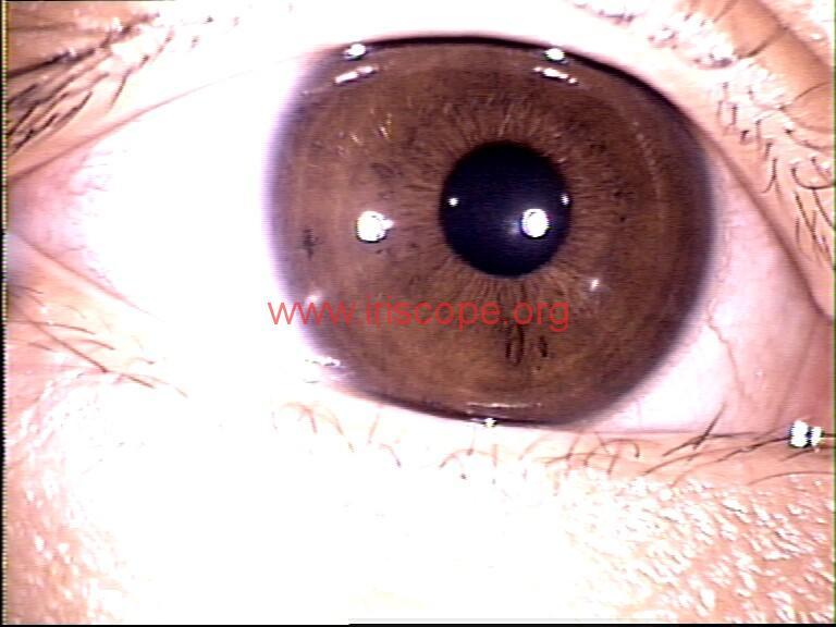 iridology images (64)