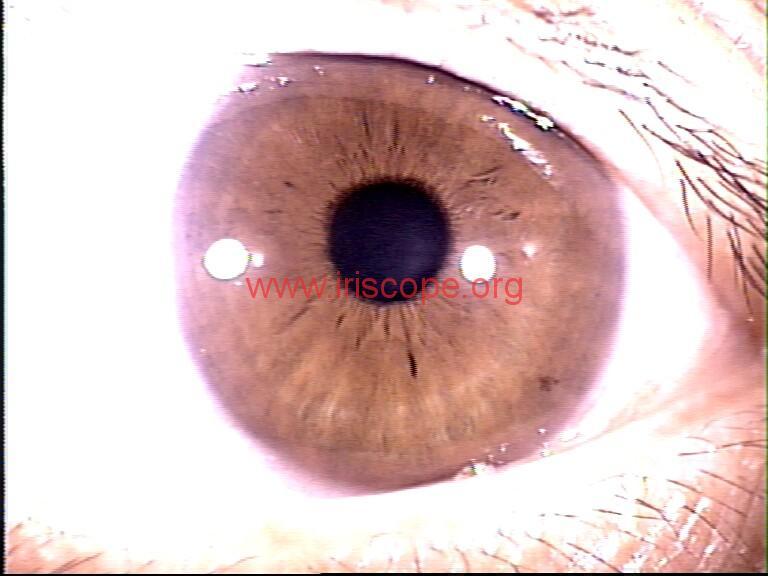 iridology images (65)