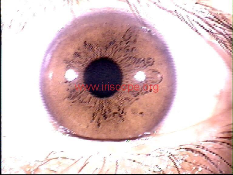 iridology images (66)