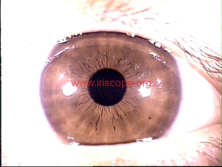 iridology images (67)
