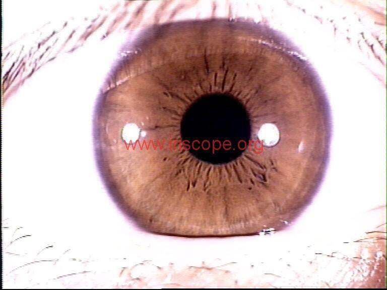 iridology images (68)