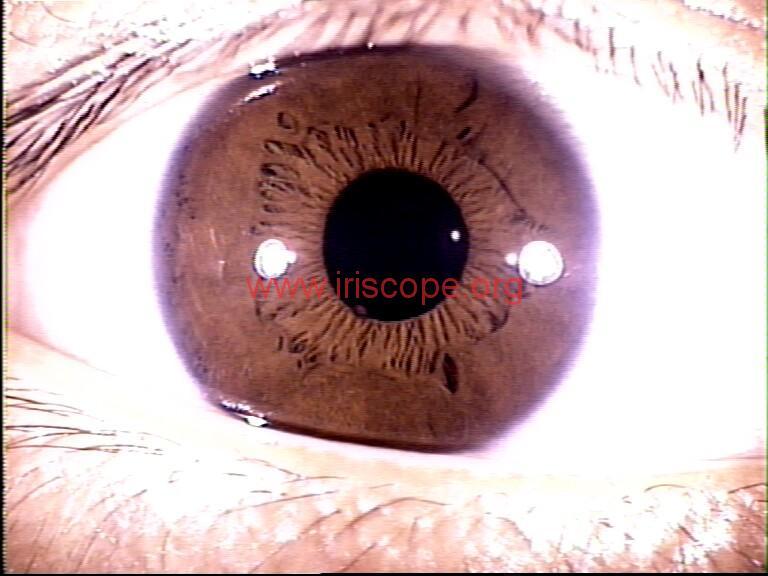 iridology images (69)