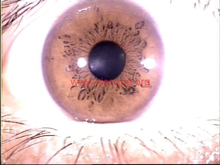 iridology images (7)