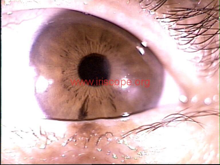 iridology images (70)