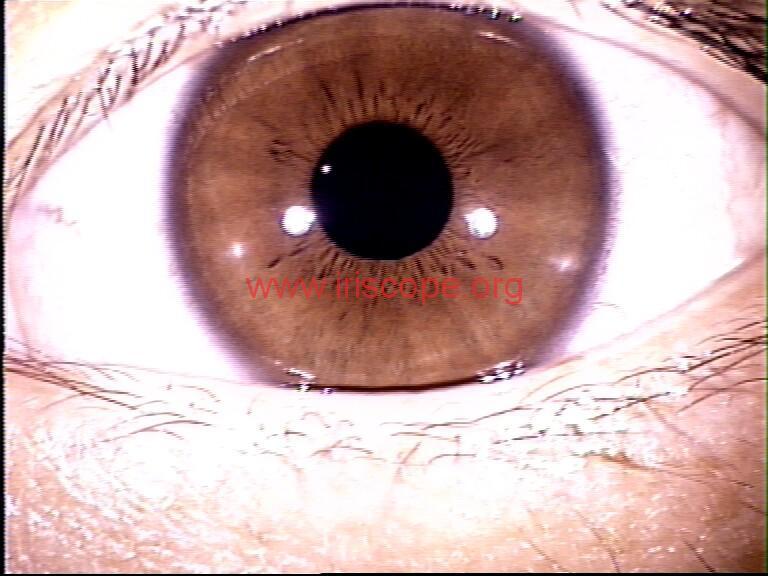 iridology images (71)