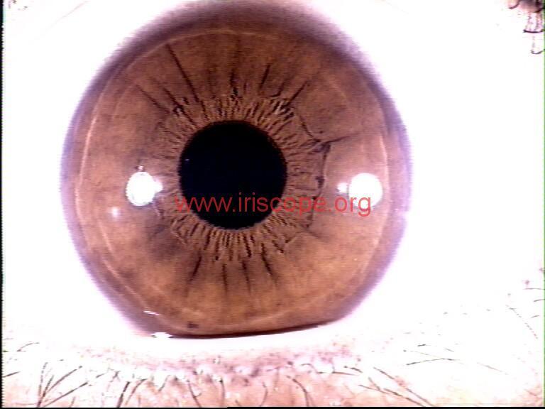 iridology images (72)