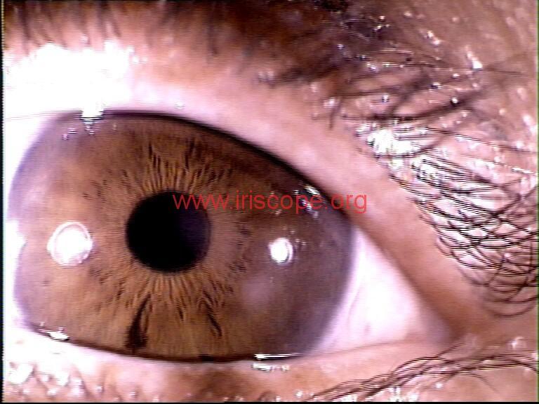 iridology images (73)