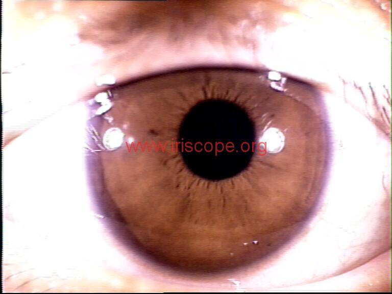 iridology images (74)