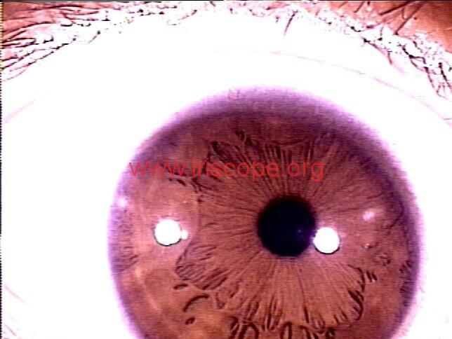 iridology images (75)