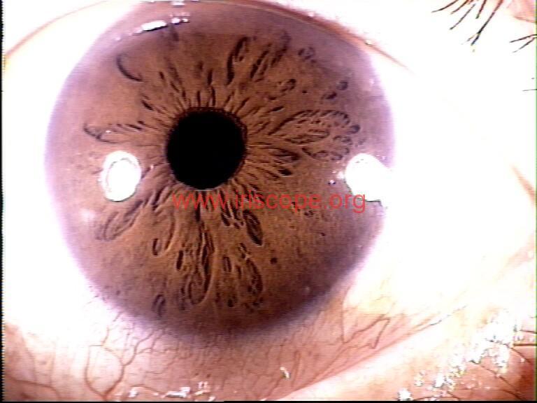 iridology images (76)