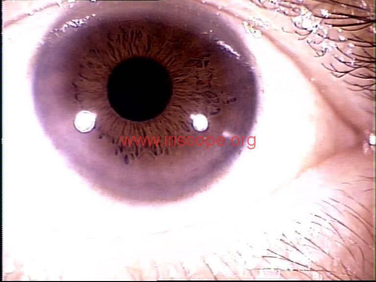iridology images (77)