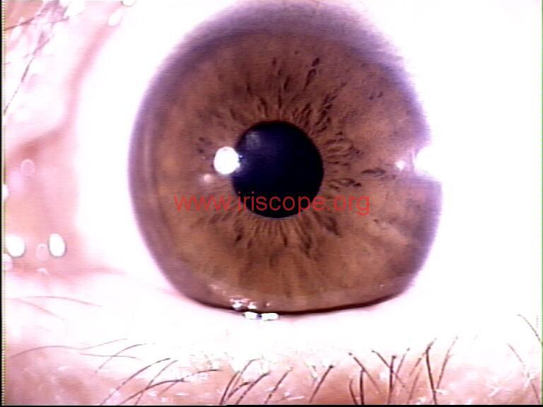 iridology images (78)