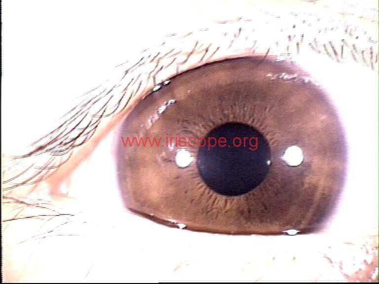 iridology images (8)