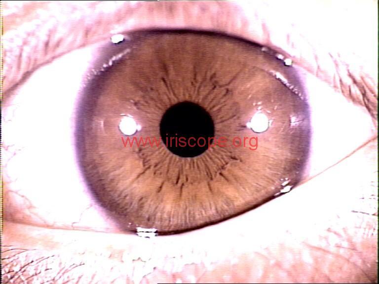 iridology images (80)