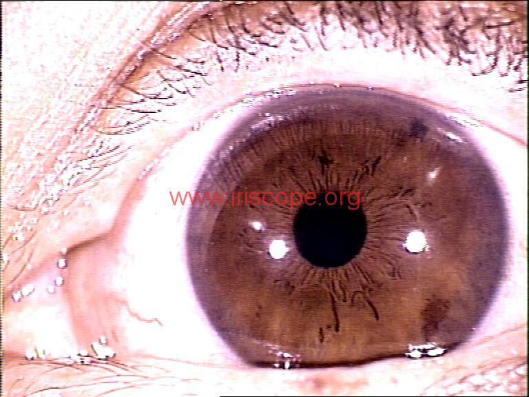 iridology images (81)