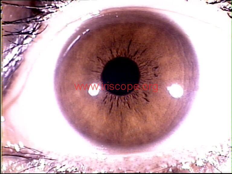 iridology images (82)